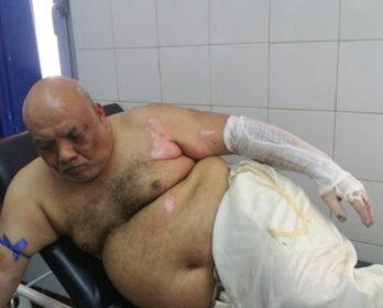 برلماني الرحامنة الزعيم يضرم النار و يحاول الانتحار و ينتهك حرمة الفوسفاط.